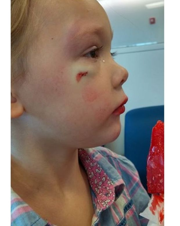 Smith's 4-year-old daughter with injury on cheekbone