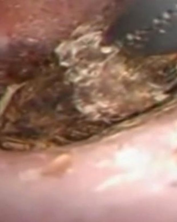 Centipede being pulled out of woman's ear