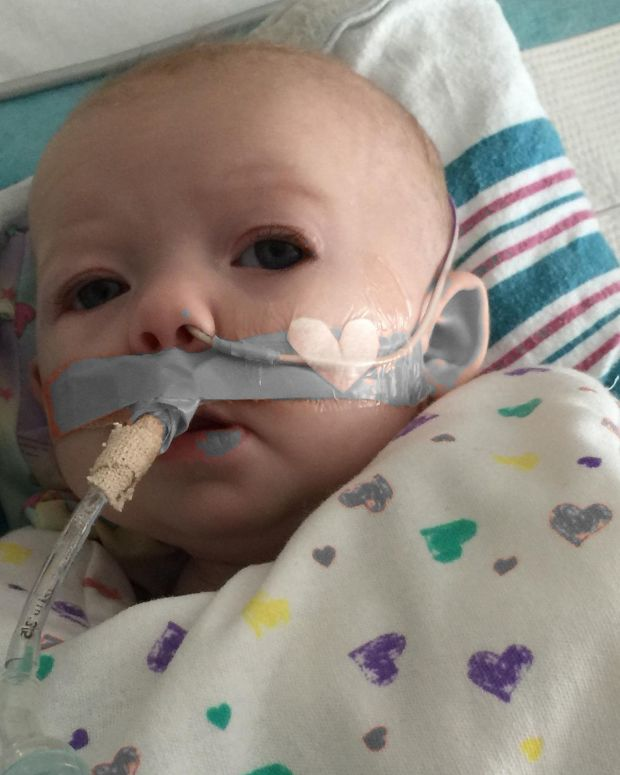 Baby Who Had RSV.