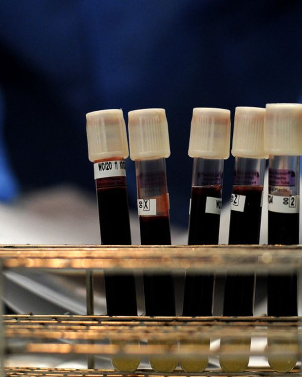 India Hospital Transfusions Infect Thousands With HIV Promo Image