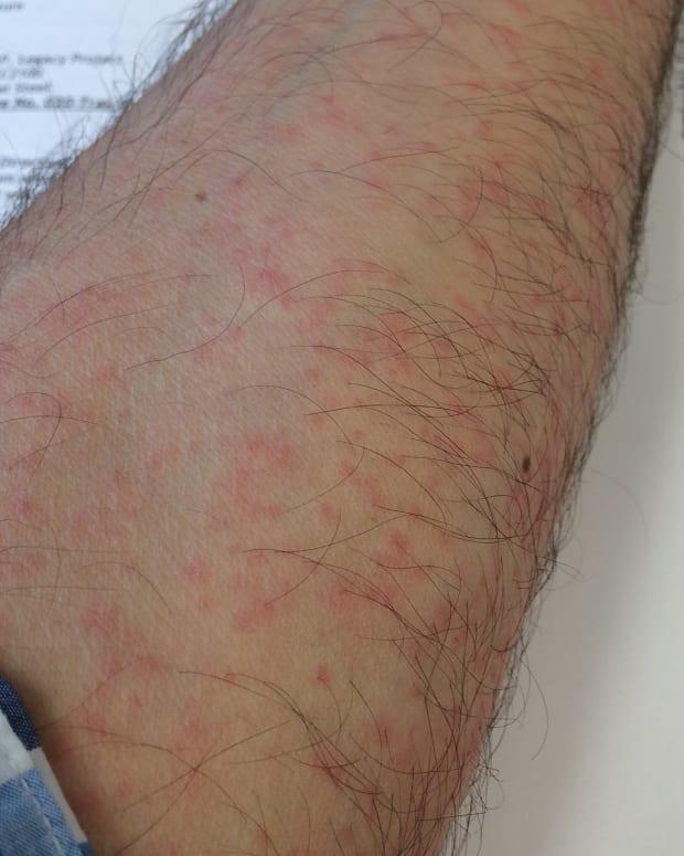 Missouri Man Shares His Zika Virus Story (Video) Promo Image