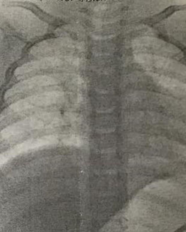 Baby's X-Ray.