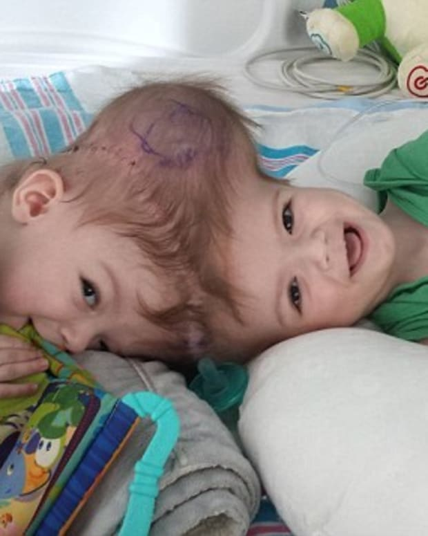 Conjoined Twins See Each Other For First Time Promo Image