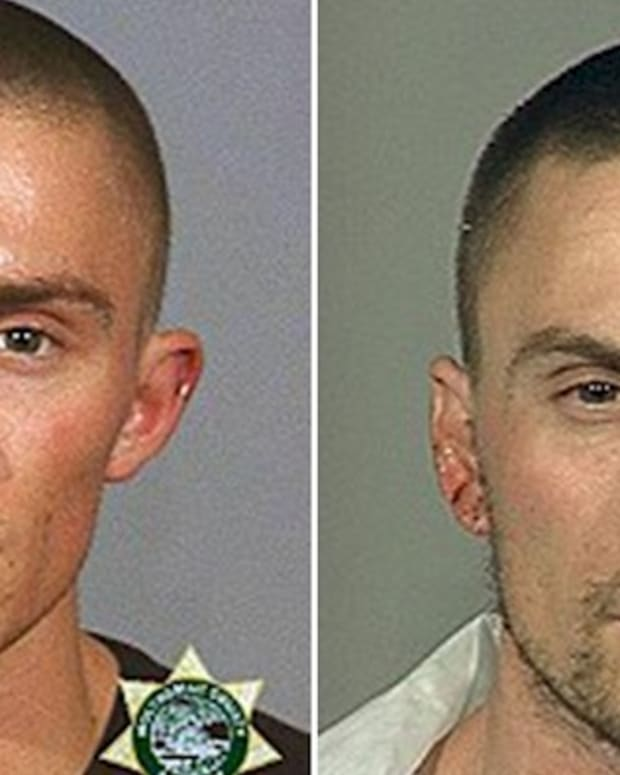 Look What Crystal Meth Did To This Man's Model Features Promo Image