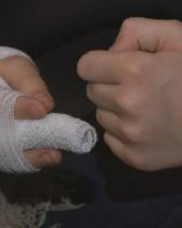 Nikolas Horner's injured finger