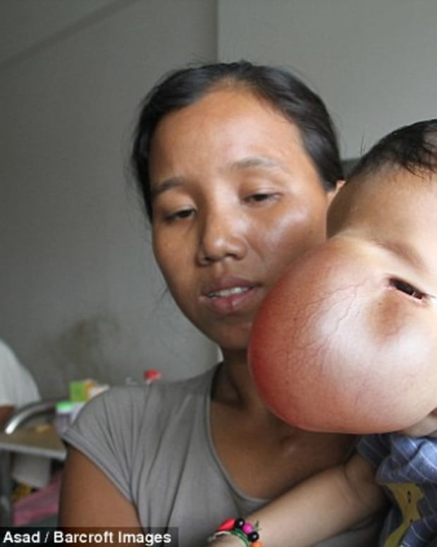 Facial girl haitian tumor
