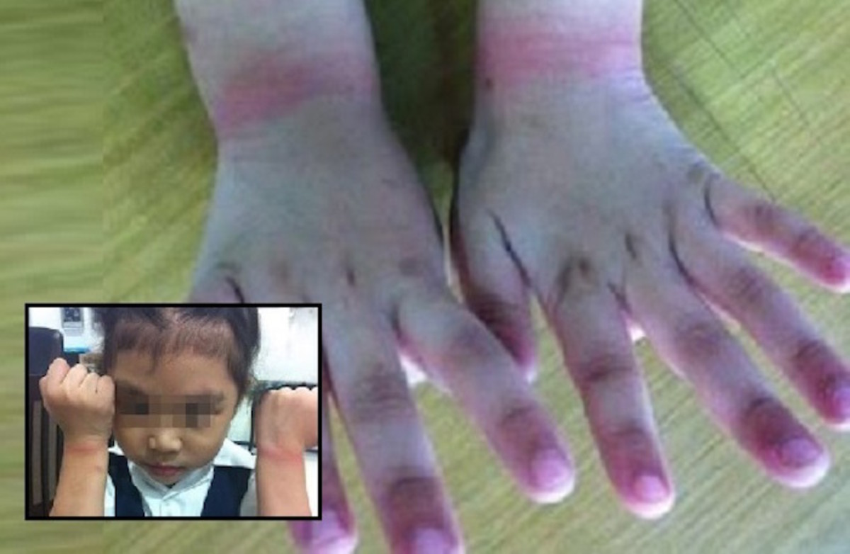 School Investigated After Teacher Tied Up Young Student's