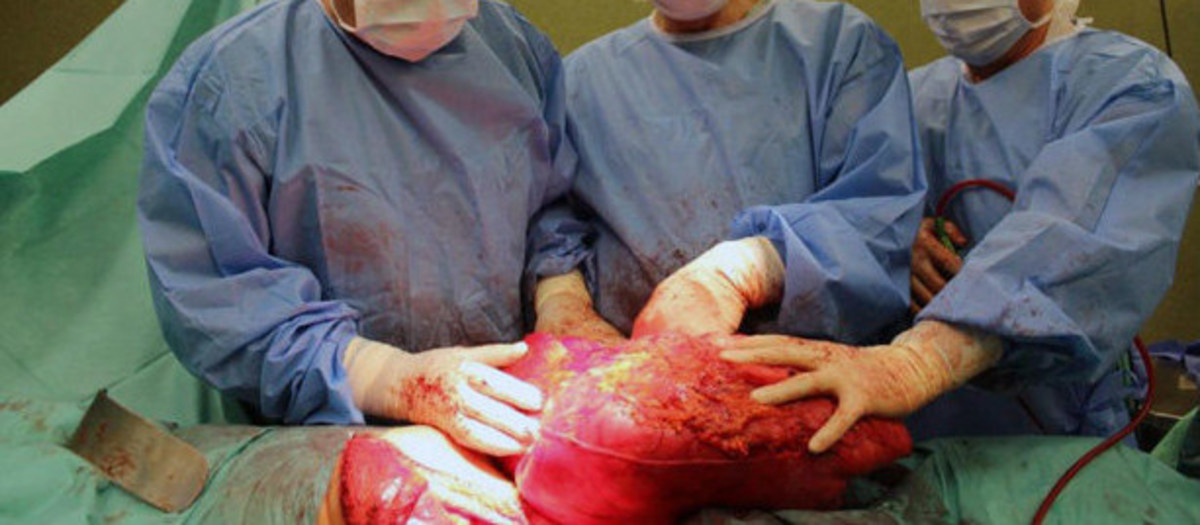 man mistook cancerous tumor for beer belly  photos