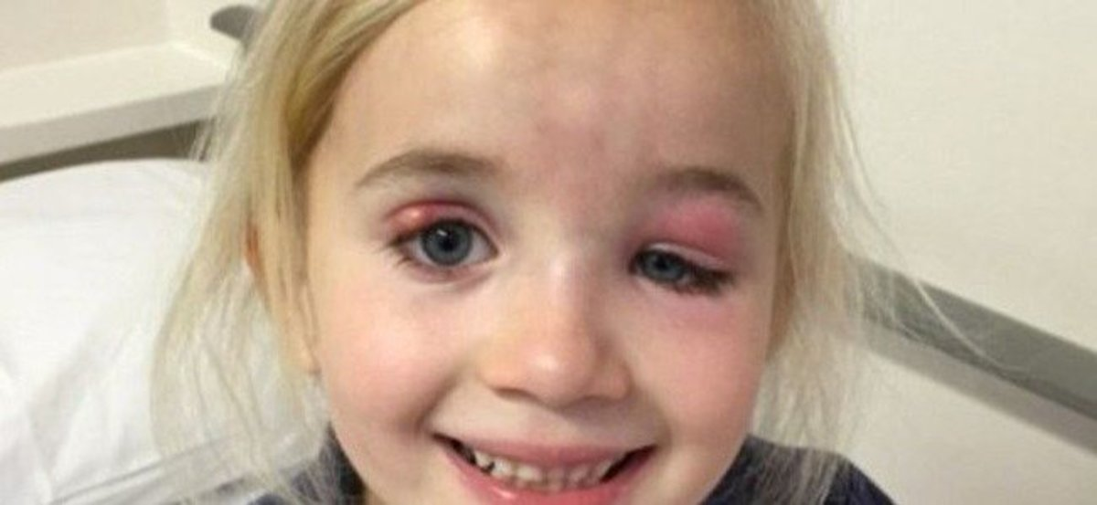 Doctors Fail To Realize What's Wrong With 5-Year-Old Eyes Until It's Too Late Promo Image