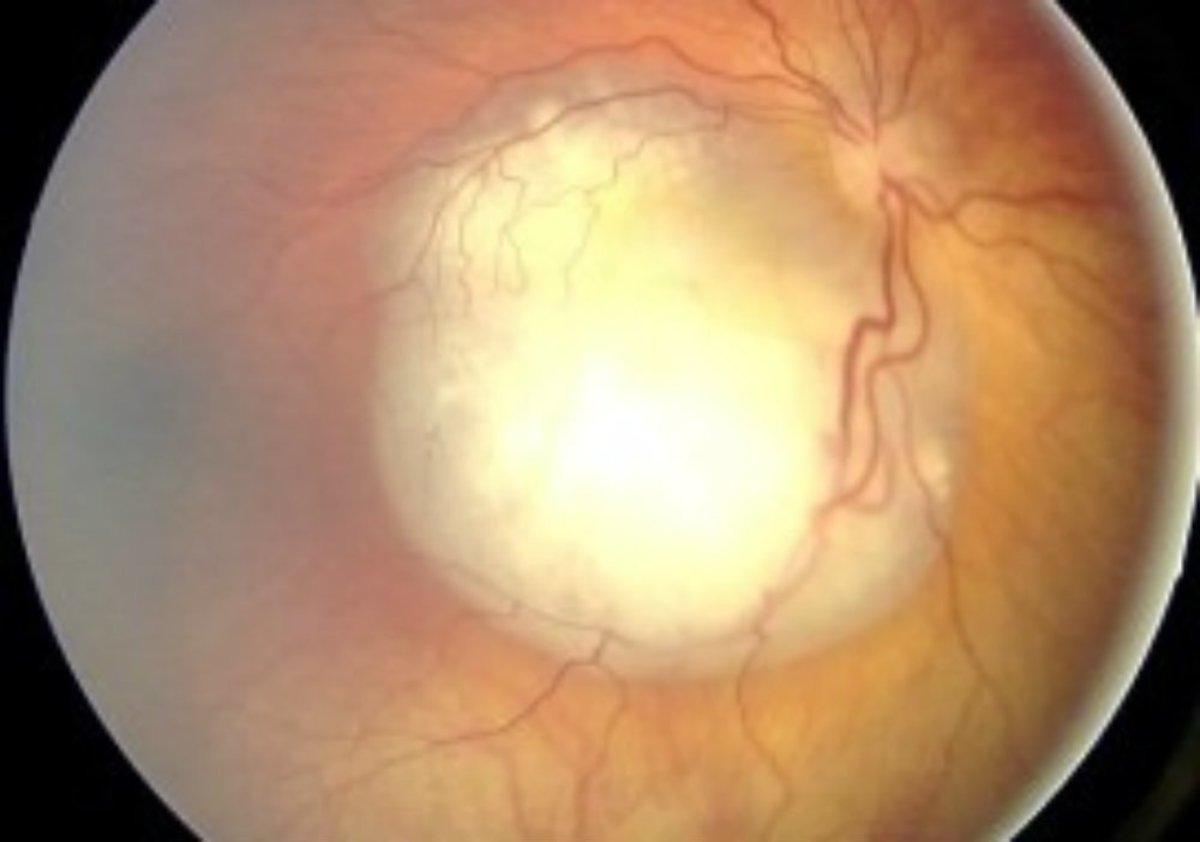 Toddler Going Blind With Shocking Eye Disease (Photos) Promo Image