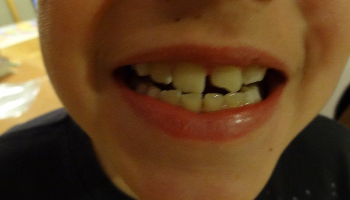 Mom Arrested For Pulling Son's Teeth At Walmart Promo Image