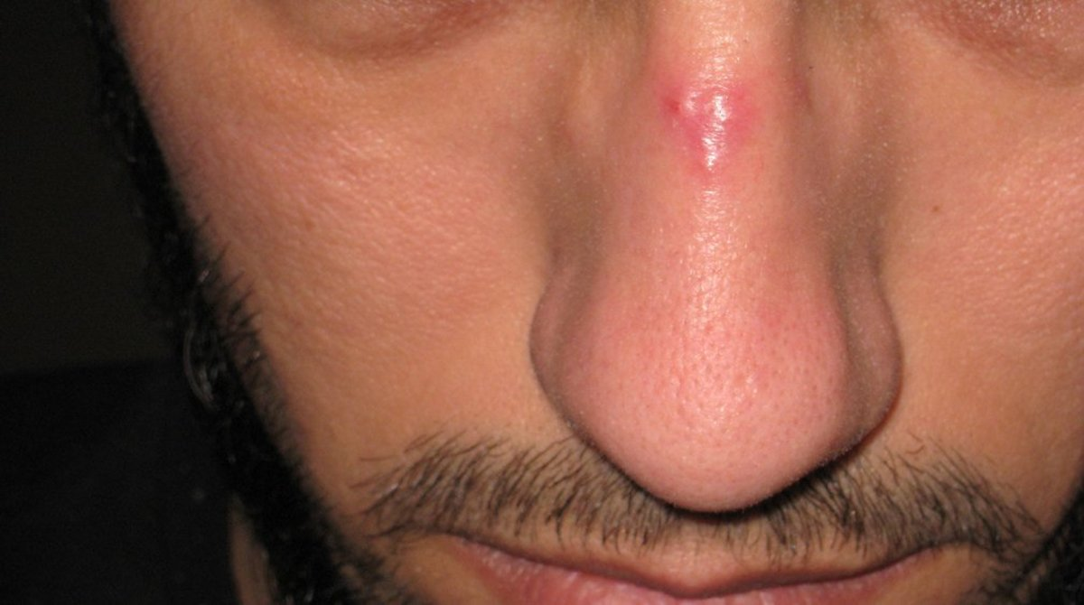 Nose Job Leaves Man With Erection That Won't Stop (Photos) Promo Image