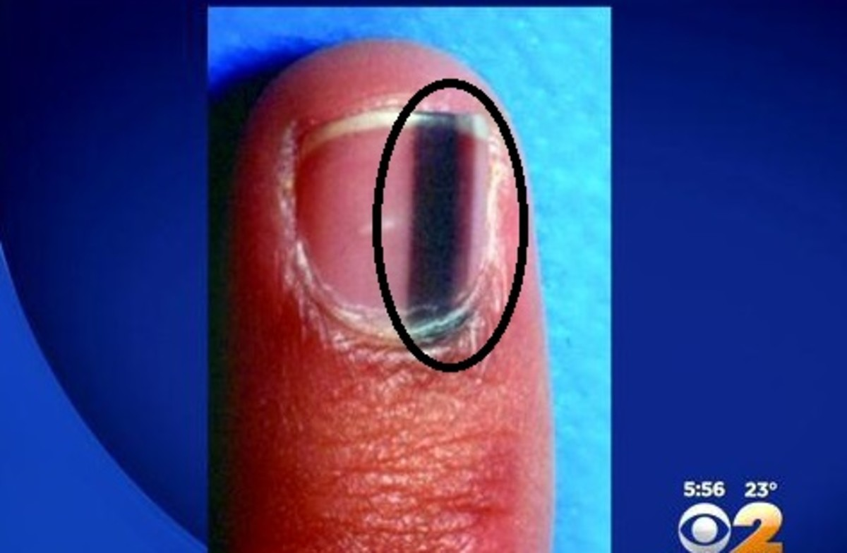 Stripe Under Fingernails May Be Sign Of Cancer (Photo) - Opposing Views