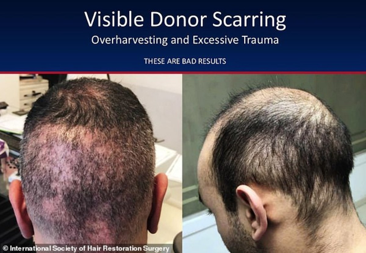 hair-transplants-6