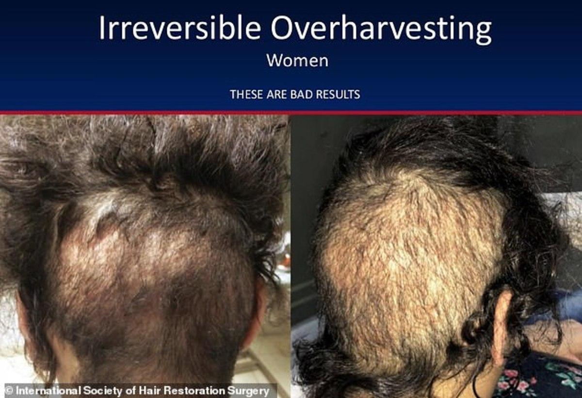 hair-transplants-5