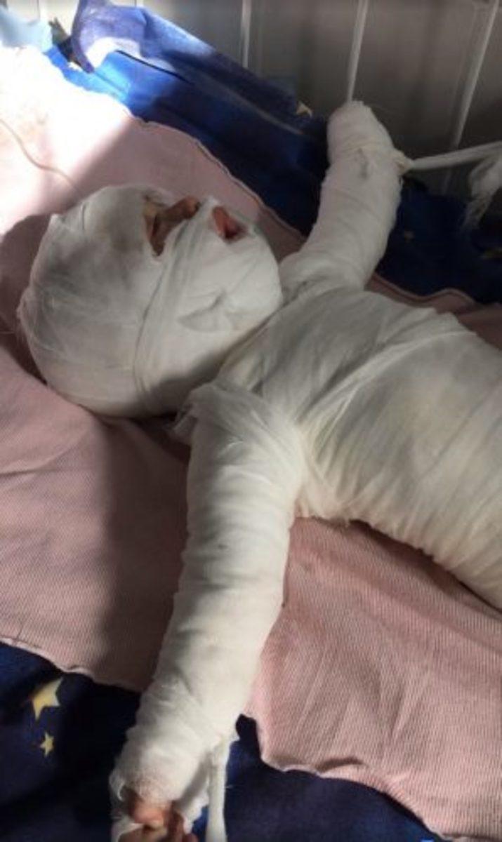 burned-baby-ukraine-1-298x500