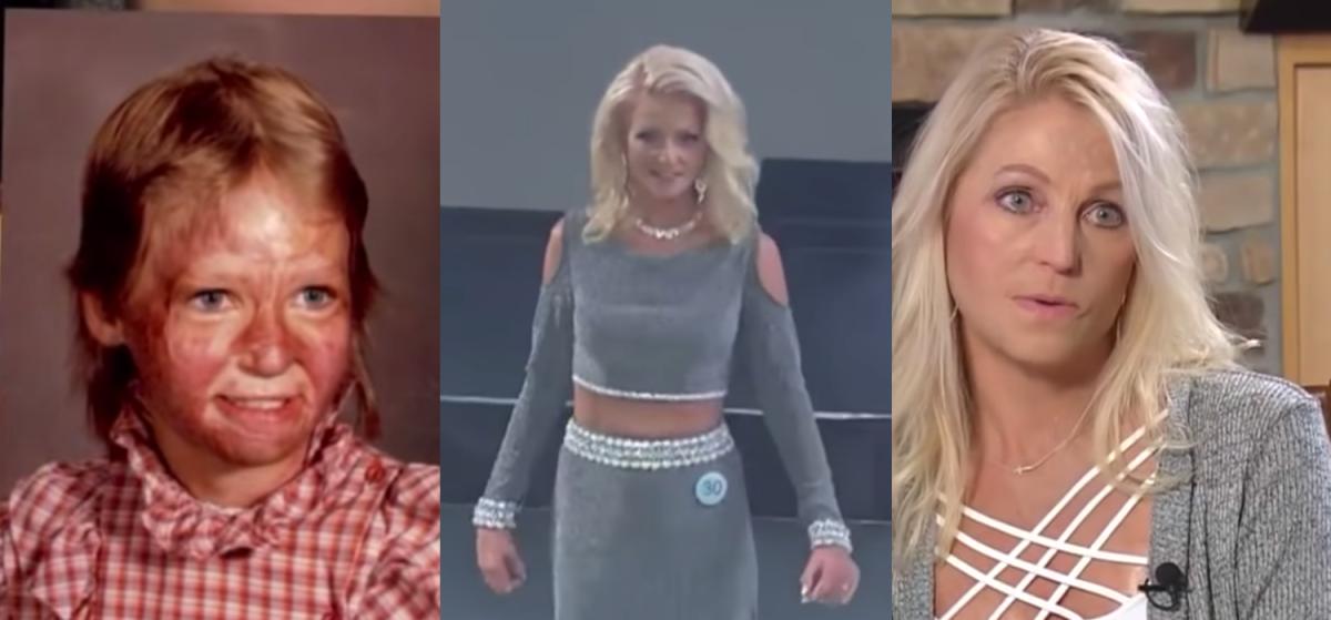 Burn-Survivor-Beauty-Pageant